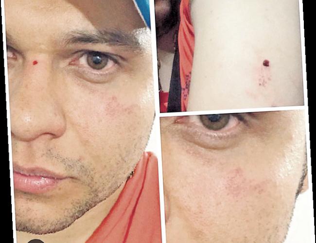 Estas fueron las imágenes que se conocieron de las lesiones de Luifer Cuello. | Foto: Archivo