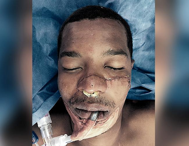 Geiner Castro Martínez habría sido atacado a machetazos por un sujeto apodado 'el Millo' en compañía de un hijo de este.   AL DÍA