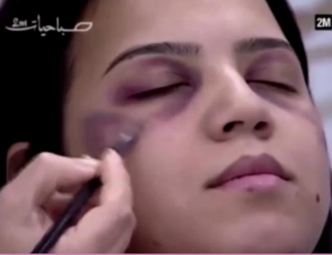 Una mujer con moretones en el rostro fue la modelo para el tutorial de maquillaje que fue transmitido en el cana marroquí. | Independet