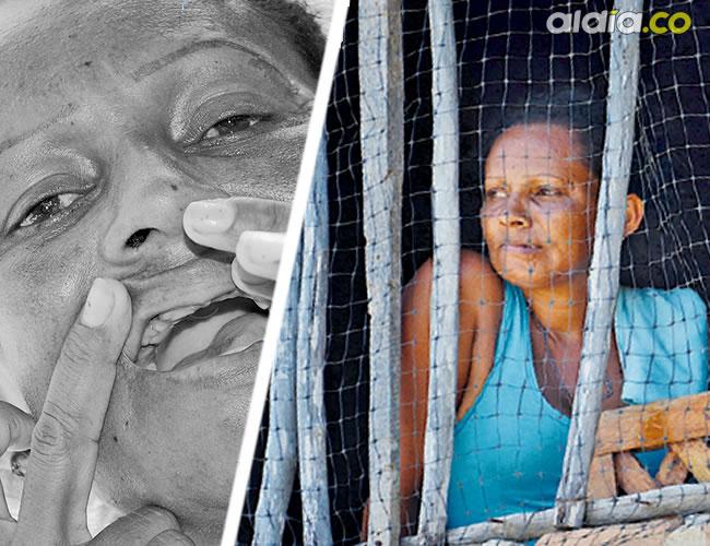 Yulimar quedó con secuelas físicas y psicológicas luego de la agresión | Luis Felipe De la Hoz