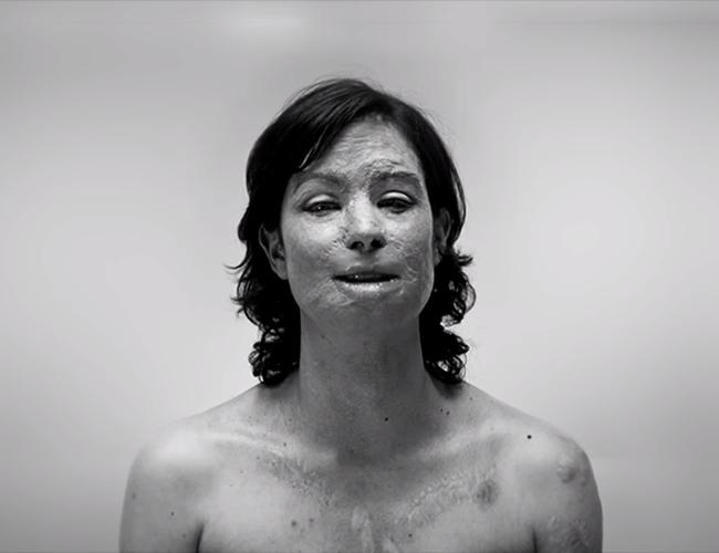 Natalia Ponce León fue quemada con ácido el 27 de marzo de 2014.