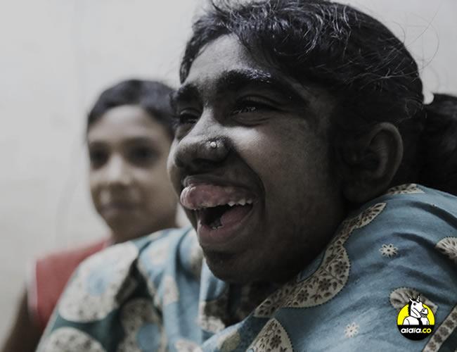Bithi Akthar, de 12 años, sonríe en una habitación del Hospital Universitario Bangabandhu Sheikh Mujib de Dacca, el 25 de mayo de 2016.  | EFE