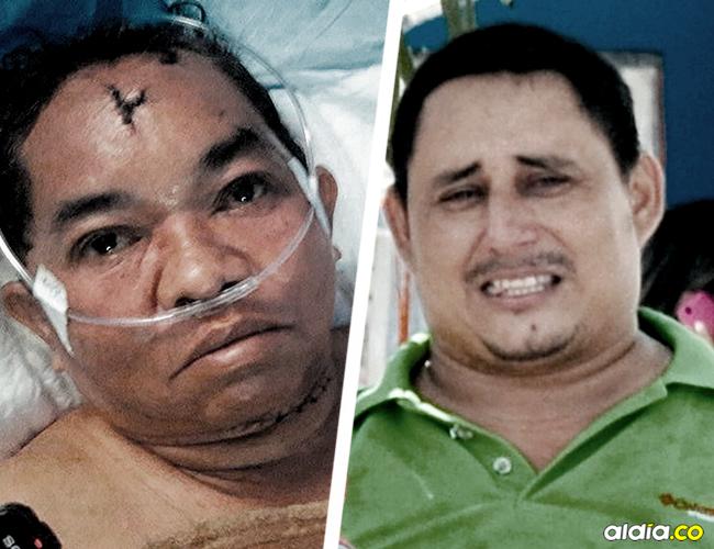 Noris Verbel Tobío le pide a las autoridades que ejerzan justicia contra su hijo porque intentó matarla el sábado. | AL DÍA