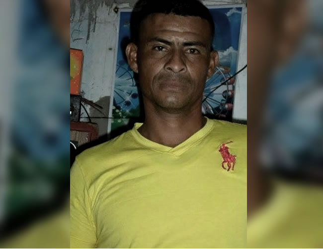Juan Carlos Méndez Martínez, el hombre quemado | Foto: Cortesía