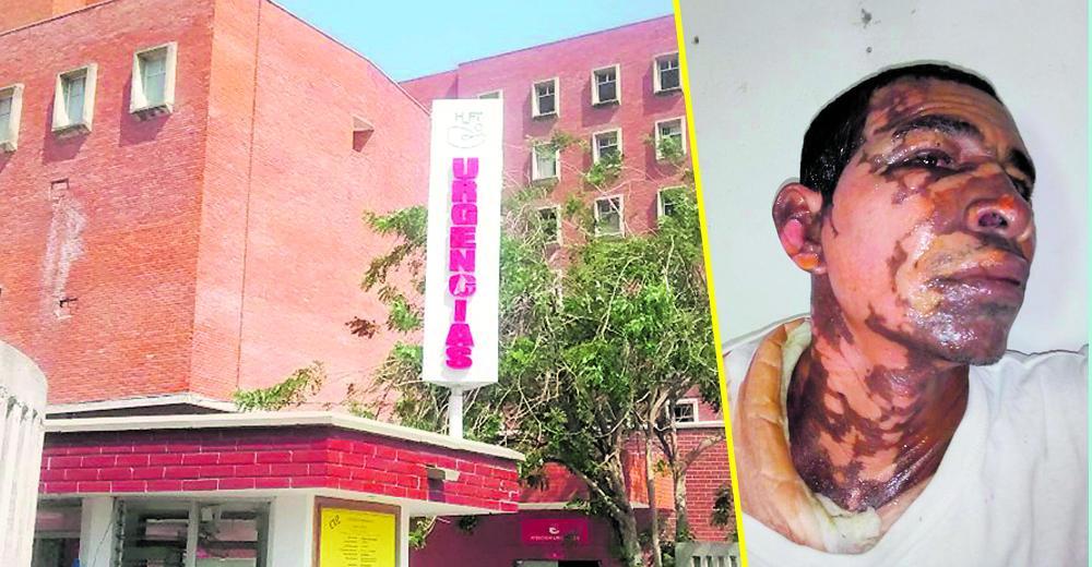 Pedro José Vanegas Jiménez fue llevado al hospital Fernando Troconis con quemaduras en el rostro y el cuerpo, después que su pareja lo bañara con agua hirviendo en una discusión | José Puente