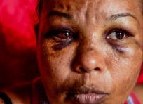 Marta Andrade recibió golpes en el rostro que la dejaron muy mal herida | Jesús Rico