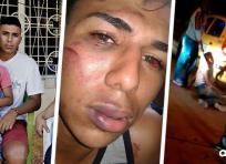 El joven Bryan Jinete Mateus sufrió graves heridas luego de que un grupo de taxistas lo torturara | ALDÍA.CO