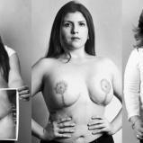 Nueve víctimas de malos procedimientos quirúrgicos estéticos muestran las secuelas en su cuerpo y cuentan su historia. | Foto: El Espectador
