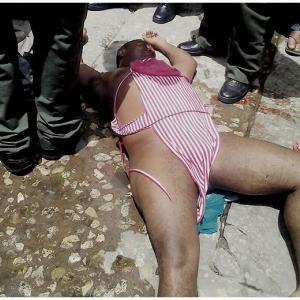 El hombre fue atendido en el Hospital Barranquilla y previamente auxiliado por miembros de la Policía, tras las múltilples heridas que sufrió en la cabeza y el rostro. | AL DíA