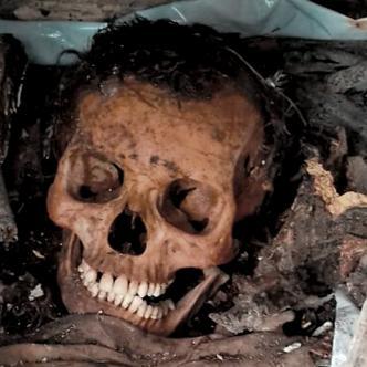 Por la falta de espacio en el cementerio sacan los restos óseos y los dejan en cualquier lugar, para utilizar la bóveda.   AL DÍA