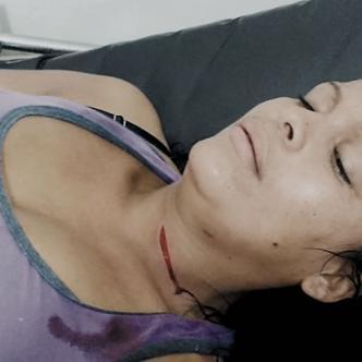 Carmen Charris Sandoval resultó con una cortada en el cuello luego que fuera atacada con una cuchilla por su marido, Jorge Andrés Rivas Contreras. | Al Día
