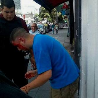 Germán Acosta luego de ser golpeado por el padre de la menor I Facebook