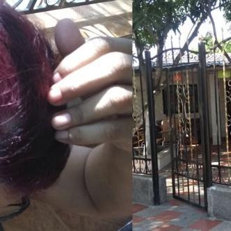 Sandra de Solano muestra la herida en la cabeza. Esta fue la casa asaltada por dos hampones en Santo Tomás.