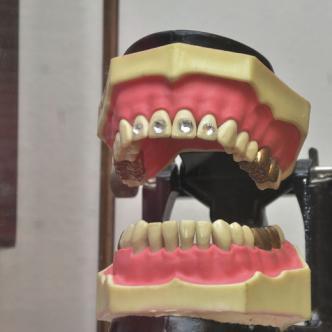 En la casa museo que hay en Carrizal, se observa una réplica del trabajo dental que iba a estrenar El Cacique.