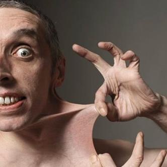 El británico Gary Turner padece un defecto en la síntesis de colágeno que le permite estirar la piel varios centímetros, tal como se observa en la foto.   Al Día
