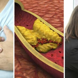 El colesterol LDL, o 'malo', transporta las partículas de colesterol por todo el cuerpo. El colesterol LDL se acumula en las paredes de las arterias, lo que genera su endurecimiento.