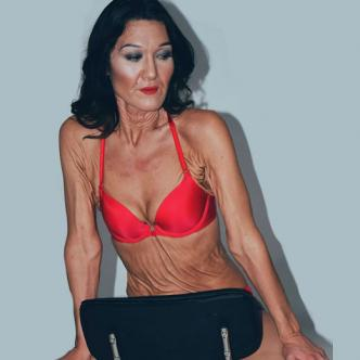 La modelo presenta desde sus 10 años el sindrome Ehlers- Danlos | Instagram