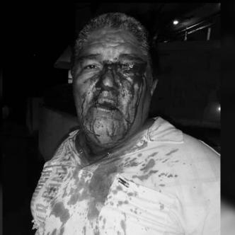 Francisco Cuello Silgado, taxista herido por los pasajeros.