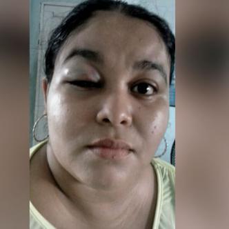 Ana Luz Pérez tiene una lesión en el ojo derecho | Al Día