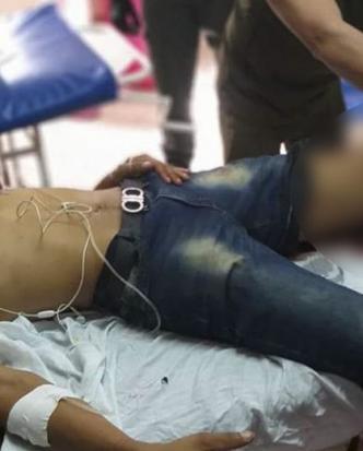 Jaime David López Mendoza resultó con herida de bala en la pierna izquierda, por lo que fue trasladado hasta la urgencia del hospital de Riohacha.