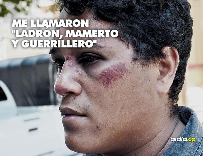 Jonathan Camargo Moya recibió una golpiza el pasado viernes cuando departía a las afueras de la Universidad del Atlántico. | Luis Felipe De la Hoz