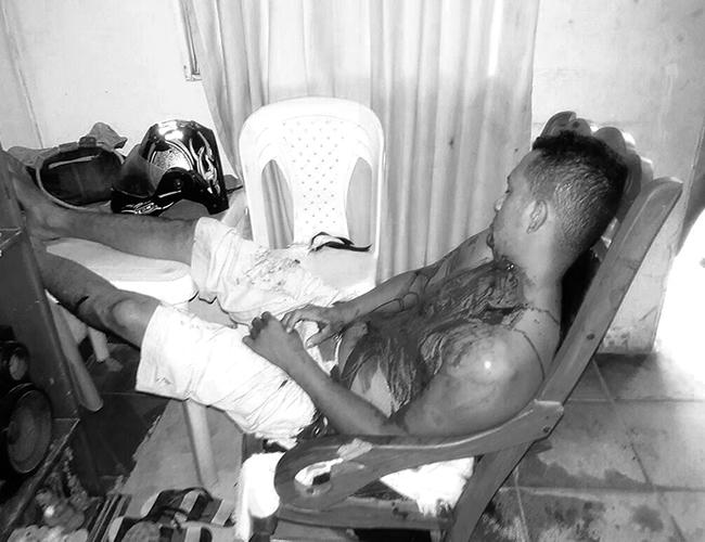 Aldrin Russil Muñoz quedó muerto en la sala de su casa, en la mecedora en la que veía el partido de la Selección Colombia contra Ecuador. | Foto: Archivo